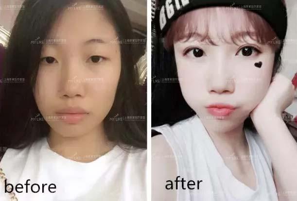 上海美莱真实双眼皮案例