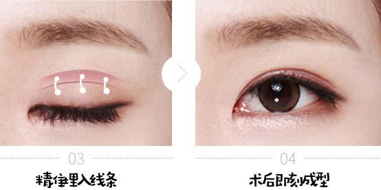 美莱眼睑厚能做双眼皮吗