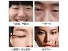 上海美莱三大术式塑造魅力双眸