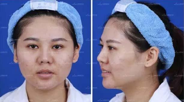 上海美莱皮肤美容精选案例
