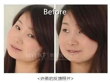 美莱瘦脸针案例