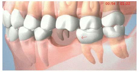 美莱科普|牙缝大的危害比你想象更可怕