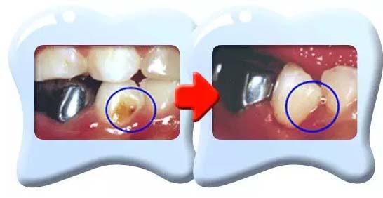 上海美莱牙齿树脂修复