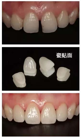 上海美莱瓷贴面牙齿治疗