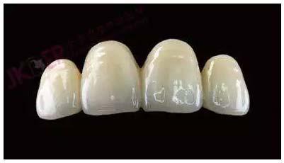 上海美莱牙齿治疗全瓷牙