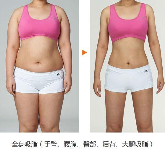 上海美莱吸脂案例