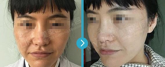 上海美莱超皮秒祛斑案例