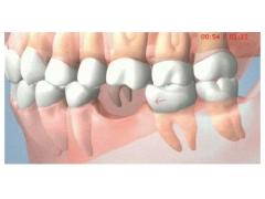 美莱科普|牙缝大危害以及矫正要及时