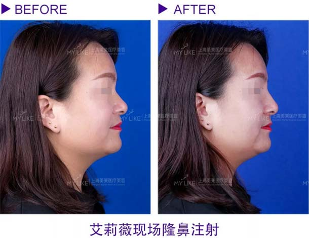 上海美莱注射玻尿酸案例
