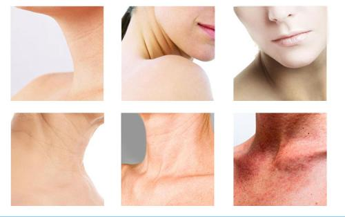 美莱脖子上的颈纹有什么好的方法能够去除