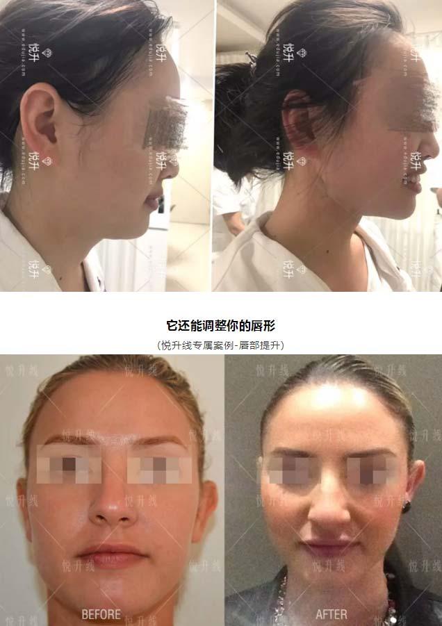 上海美莱去除双下巴案例