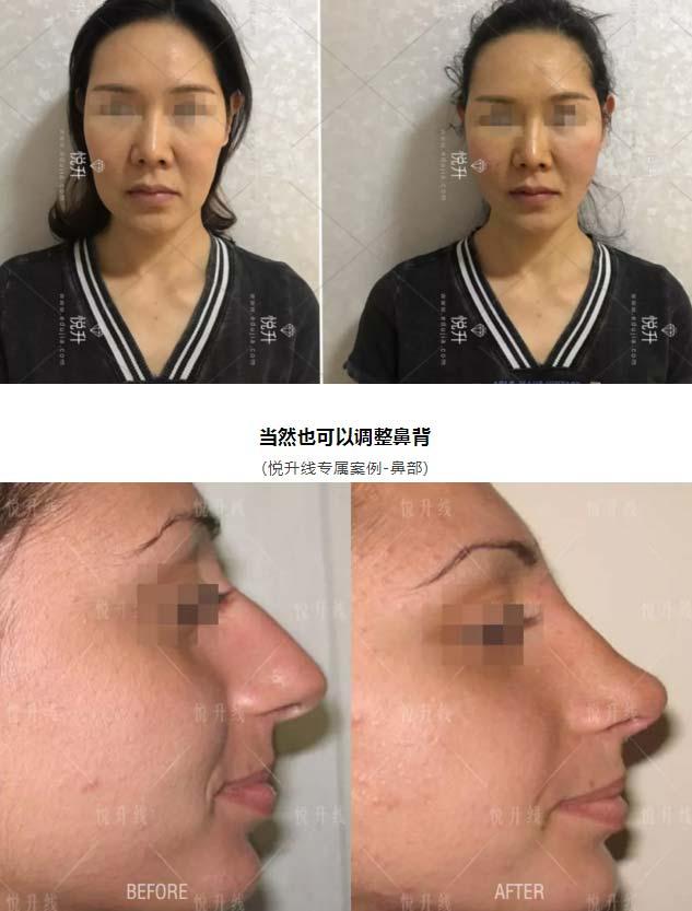 上海美莱去调整唇形案例