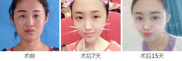 上海美莱全切双眼皮案例