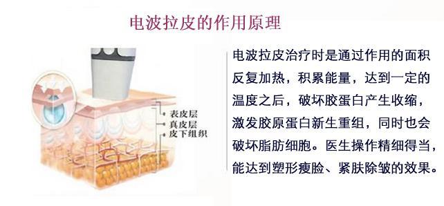 上海美莱拉皮的费用一般是多少