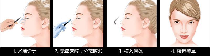 上海做假体隆鼻整形费用多少钱