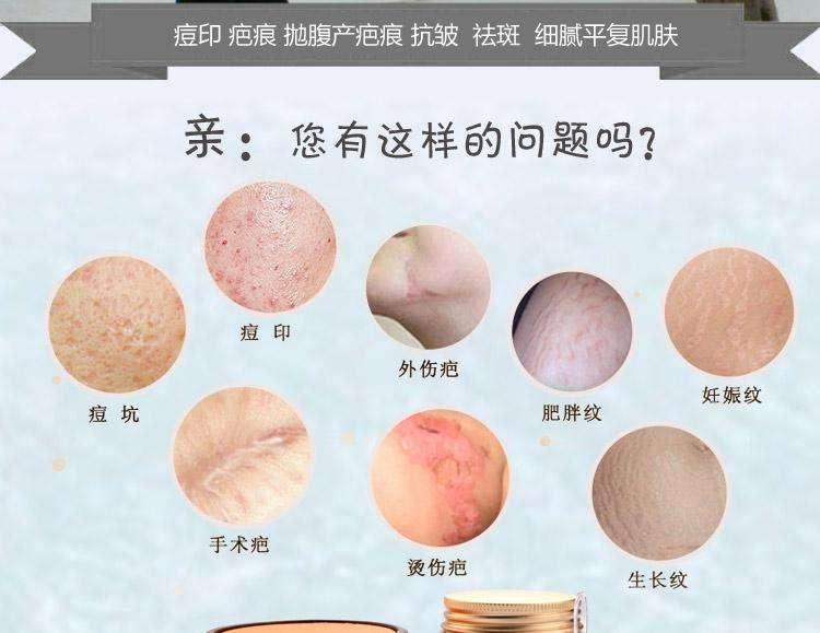 上海祛疤一般费用是多少