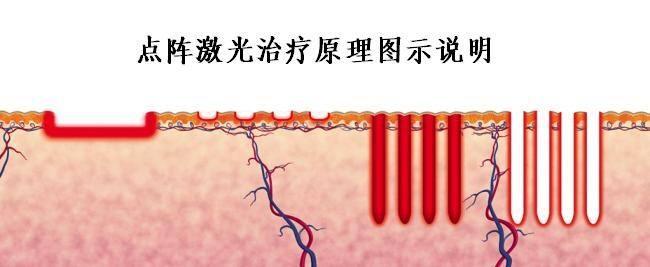 上海美莱光子嫩肤、点阵激光,果酸焕肤哪种好