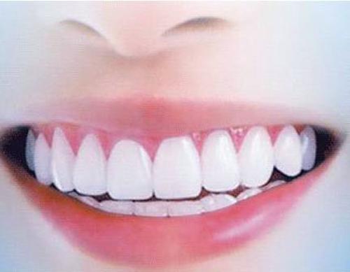 上海做牙齿美白多少钱