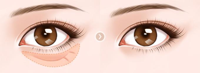 上海祛眼袋手术费用多少