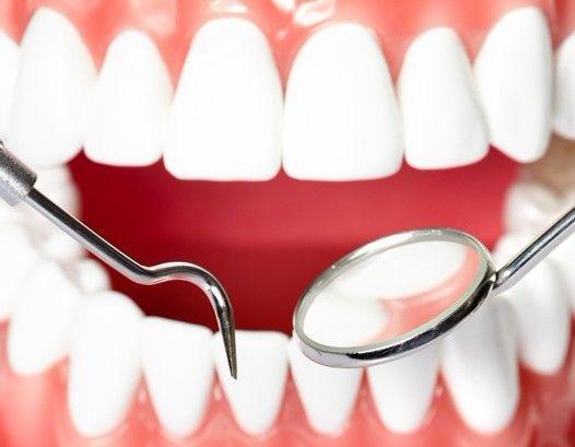 牙齿矫正什么价格