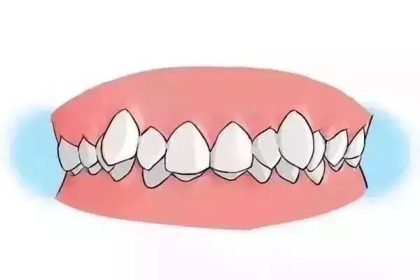 上海矫正牙齿要多少钱