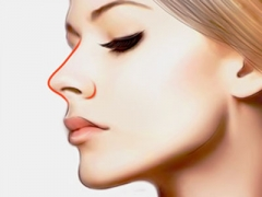 假体隆鼻手术需要多少钱