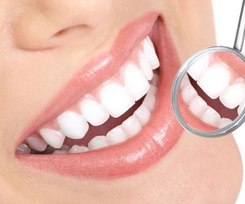 上海牙齿美白多少钱
