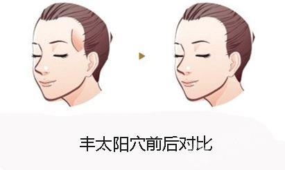 上海美莱丰太阳穴效果好吗