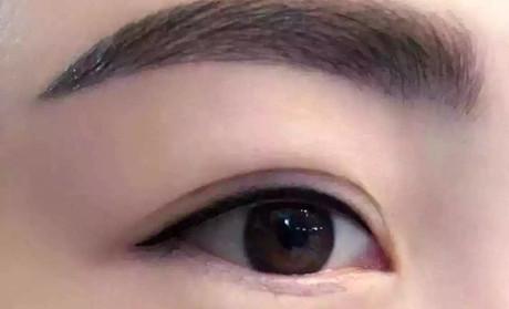 上海双眼皮修复哪家好