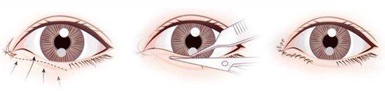 开眼角手术大概要多少钱