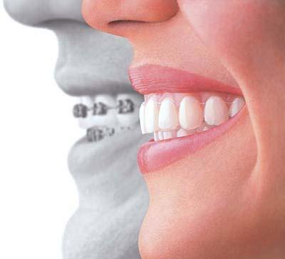 牙齿畸形矫正费用多少