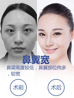 自体软骨隆鼻整形医生亲诊上海美莱