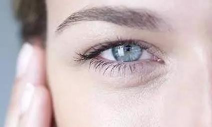 如何祛除眼角皱纹