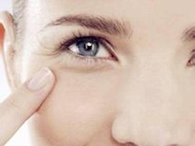 怎么消除眼角皱纹