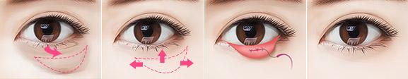 有什么办法可以治疗眼袋
