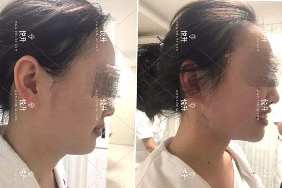 悦升线手术案例
