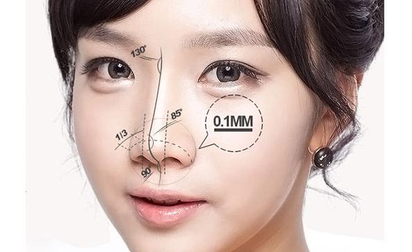 上海做自体软骨隆鼻恢复期是多久