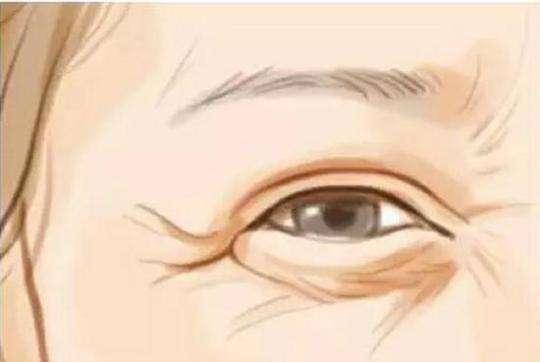 消除眼角皱纹什么方法效果好