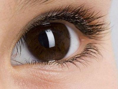割双眼皮会痛吗?术后还要注意什么