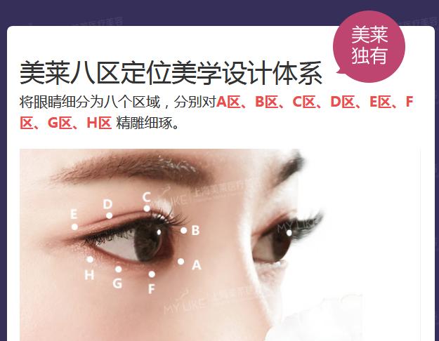 上海美莱整形双眼皮做的怎么样
