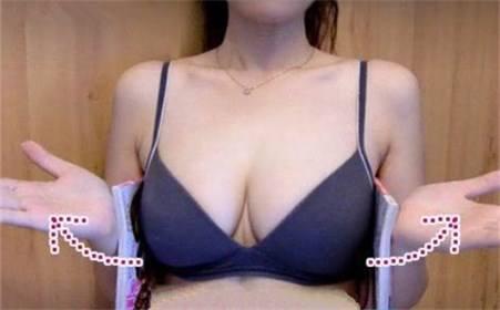 上海美莱假体丰胸的手术过程