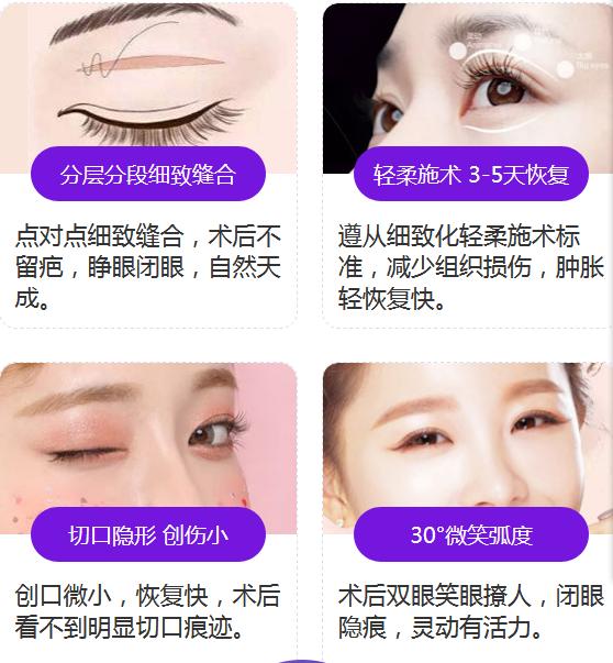 双眼皮全切上海美莱做的好不好