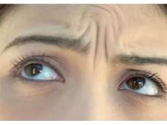 玻尿酸填充眉间纹的优势