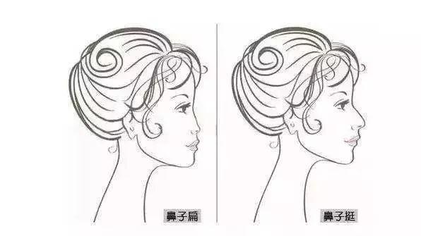 上海美莱达拉斯隆鼻按照塑形标准为你打造专属美鼻!