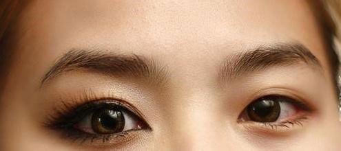 上海美莱开眼角有什么优势