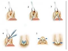 上海美莱针对鼻小柱延长的方法有哪些