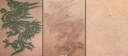 激光洗纹身多少钱