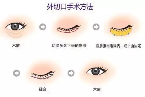 """想拥有迷人双眸_快来上海美莱做个""""绝袋佳人""""吧!"""