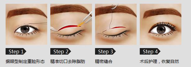全切双眼皮的手术过程