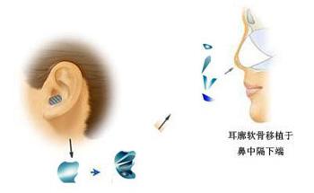 耳软骨隆鼻手术的价格